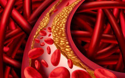 Cholesterin – lebensnotwendig oder lebensgefährlich?