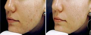 Verbesserung Hautbild bei Akne durch Omega-3-Fettsäuren