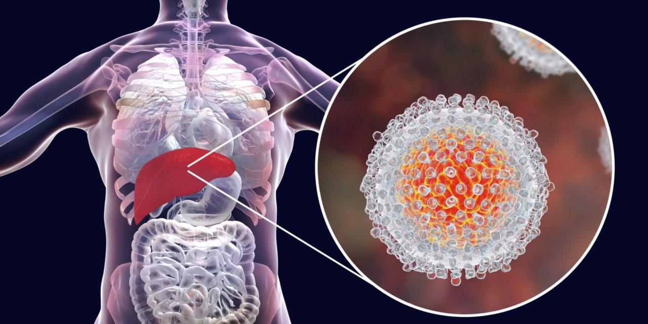 Hepatitis C – was kann die Naturheilkunde?